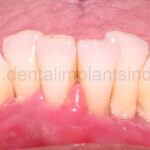 teeth replacement with dental implanst in chennai